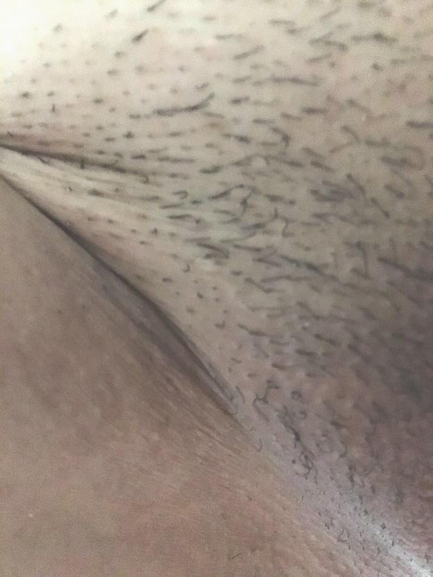 ケノン 全剃り 画像